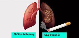 Những bệnh ung thư thường gặp ở Việt Nam? Cách phòng bệnh ung thư