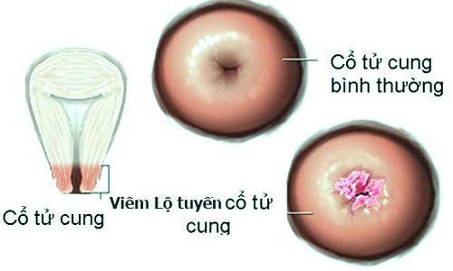 Triệu chứng ung thư tử cung