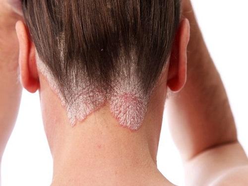 Biểu hiện của bệnh ung thư da đầu với tình trạng bong tróc mảng da