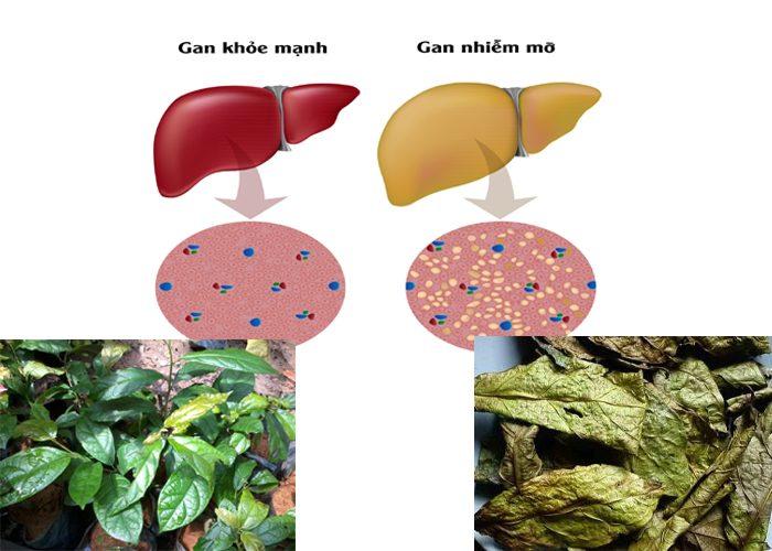 Xạ đen hỗ trợ điều trị bệnh gan nhiễm mỡ