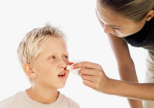 Dấu hiệu ung thư máu ở trẻ em là chảy máu cam