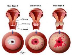 Các giai đoạn của ung thư cổ tử cung.