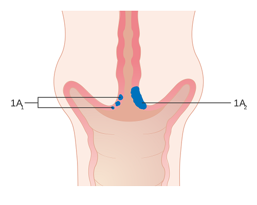 Hình ảnh bệnh ung thư cổ tử cung giai đoạn đầu
