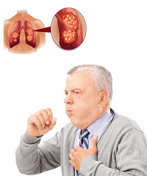 Nguyên nhân bệnh ung thư phổi là gì?