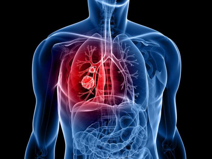 Phương pháp xạ trị ung thư phổi an toàn, không gây ảnh hưởng đến các bộ phận khác