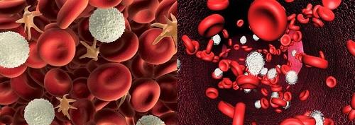 Sự gia tăng tế bào bạch cầu là nguyên nhân của ung thư máu