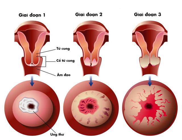 Ung thư tử cung được chia làm 4 giai đoạn khác nhau.