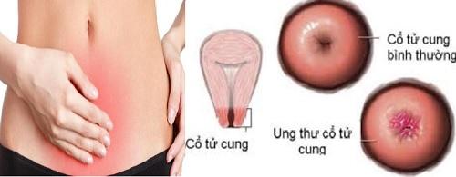 Ung thư cổ tử cung biểu hiện