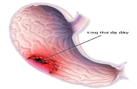 Tế bào ung thư dạ dày di căn chữa trị như thế nào?