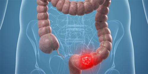 Ung thư đại tràng là ung thư phát triển từ ruột kết hay trực tràng