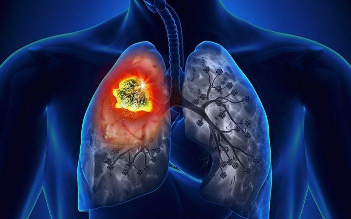 Ung thư phổi có mấy giai đoạn? Ung thư phổi có nhiều giai đoạn