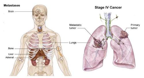 Ung thư phổi di căn não xương được nhận biết và điều trị như thế nào?