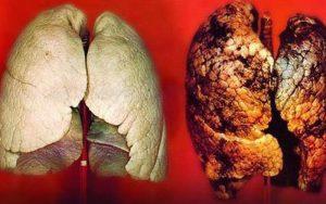 Hình ảnh ung thư phổi bị tàn phá do thuốc lá