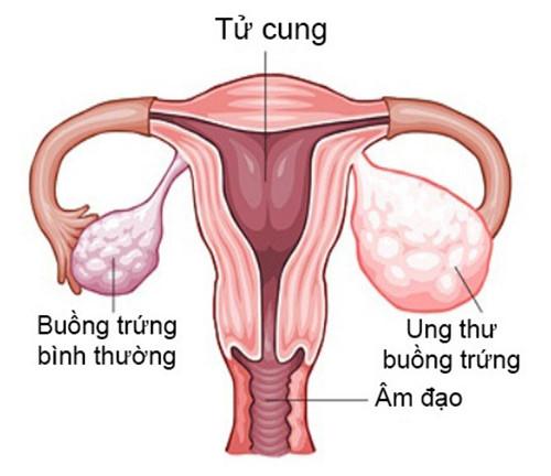 Các tế bào ung thư phát triển trong buồng trứng gây nên bệnh ung thư buồng trứng