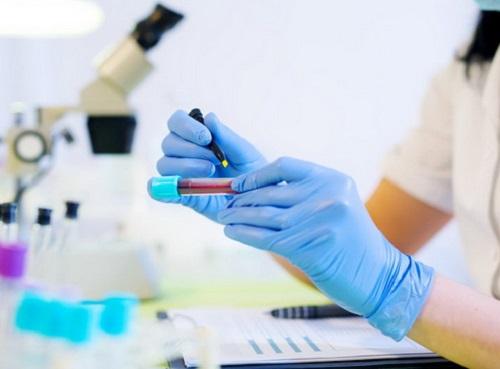 Xét nghiệm máu xét nghiệm ung thư sớm