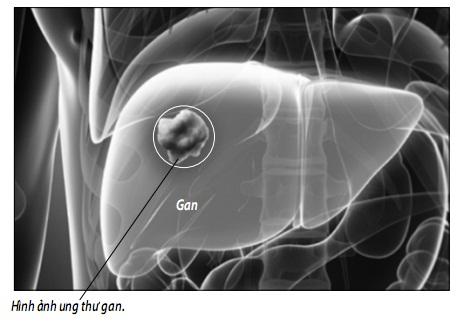 Cách phòng tránh ung thư gan kết hợp với chế độ uống hợp lý và tăng cường sức đề kháng