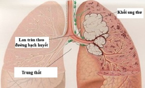 Hình ảnh của bệnh ung thư phổi - nhất định bạn phải biết