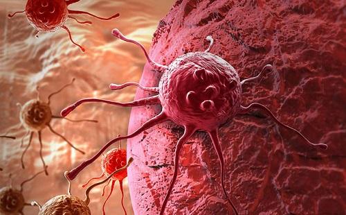 Các bệnh ung thư thường gặp là gì