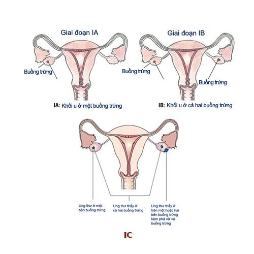 Các giai đoạn gây ung thư buồng trứng triệu chứng