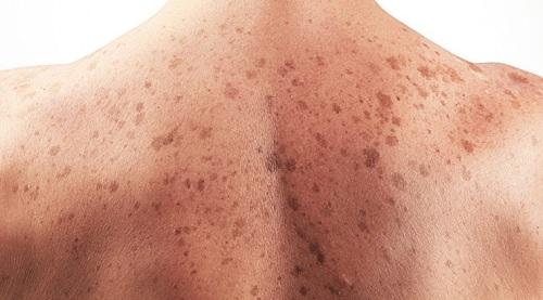 Dấu hiệu nhận biết ung thư da – Biện pháp phòng ngừa và điều trị