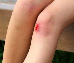 Dễ bầm tím và chảy máu là dấu hiệu ung thư máu