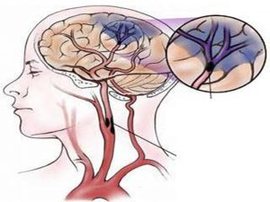 Thuốc nam điều trị ung thư não là phương pháp được nhiều người áp dụng