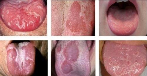 Các hình ảnh về bệnh ung thư lưỡi