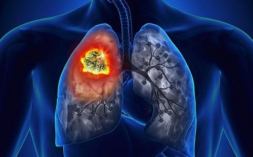 Khối u trong lá phổi