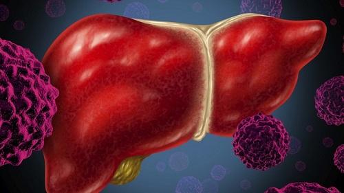 Mắc ung thư gan vẫn có thể sống được nhiều năm