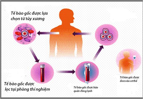 Phác đồ điều trị ung thư máu bằng phương pháp ghép tế bào gốc