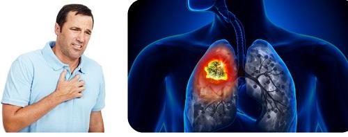 Phác đồ hóa trị ung thư phổi giúp đẩy lùi bệnh hiệu quả