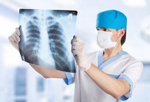 Điều trị ung thư phổi bằng phương pháp kiểm tra bệnh trước khi chữa