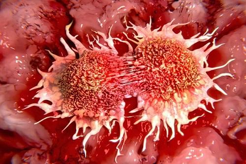 Tế bào ung thư đang phát triển mạnh