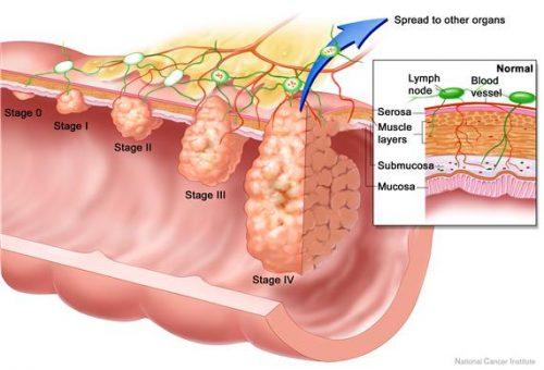 Những triệu chứng của ung thư hậu môn nhân biết giai đoạn bệnh