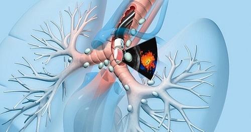 Triệu chứng ung thư phế quản phát hiện nhờ nội soi