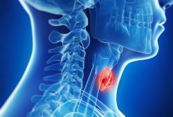 Cách điều trị ung thư vòm hầu tùy thuộc vào giai đoạn của bệnh