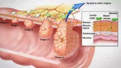 Các giai đoạn ung thư đại tràng giai đoạn 3