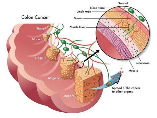 Ung thư đại tràng giai đoạn đầu