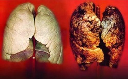 Ung thư phổi có trị được không?