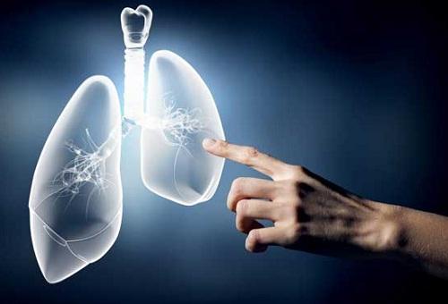 Ung thư phổi chữa được không?