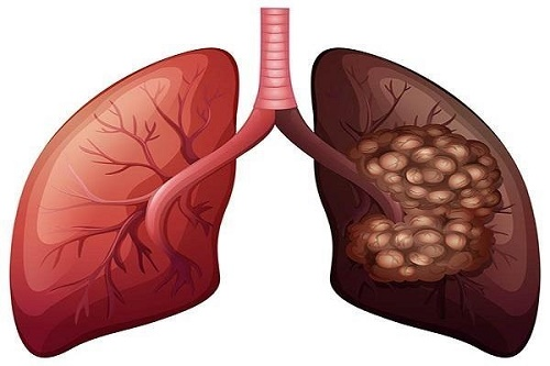 Ung thư phổi có lây qua đường hô hấp không? Cách phòng bệnh tốt?