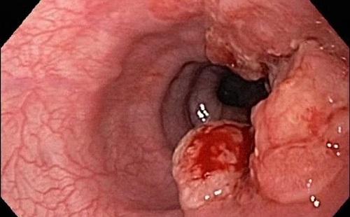 Ung thư thực quản đang phát triển gây chảy máu