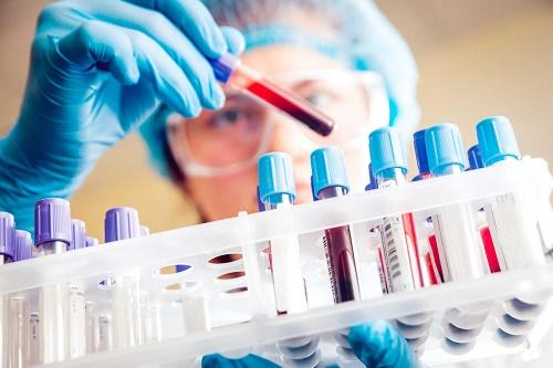 Xét nghiệm máu để xác định ung thư buồng trứng.