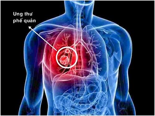 Xét nghiệm tế bào ung thư phổi và những điều bạn cần biết