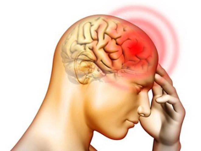 Ở giai đoạn đầu, dấu hiệu của ung thư não dễ bị phớt lờ nhất