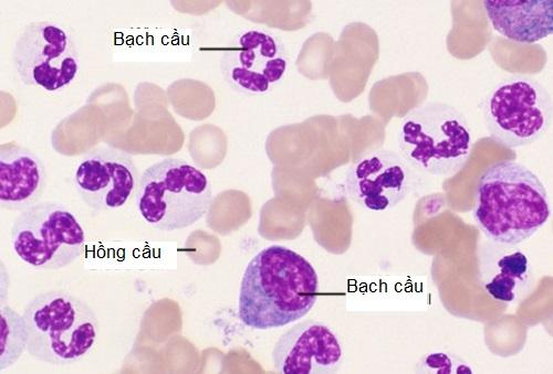 Bệnh ung thư máu là đột biến gì? Ung thơ máu do biến đổi gen làm tăng tế bào bạch cầu.