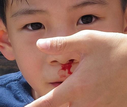 Chảy máu cam thường xuyên là một trong những dấu hiệu cơ bản của bệnh ung thư máu.