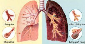 Điều trị bệnh ung thư phổi bằng hóa trị là biện pháp ngăn bệnh phát triển.