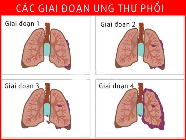 Ung thư phổi không phải tế bào nhỏ có 4 giai đoạn bệnh
