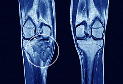 Bệnh ung thư phổi di căn qua xương gây nhiều nguy hại.